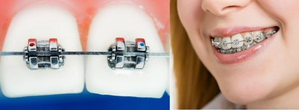 Braces Sydney - How do they work?