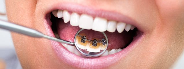 Discover the discreet alternative to get a straighter smile – lingual braces