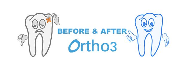 Nothing like visual results – before and after photos of orthodontics